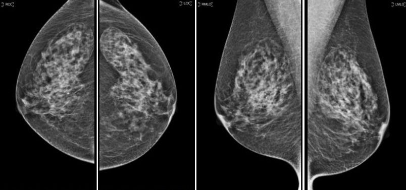 mamographie1